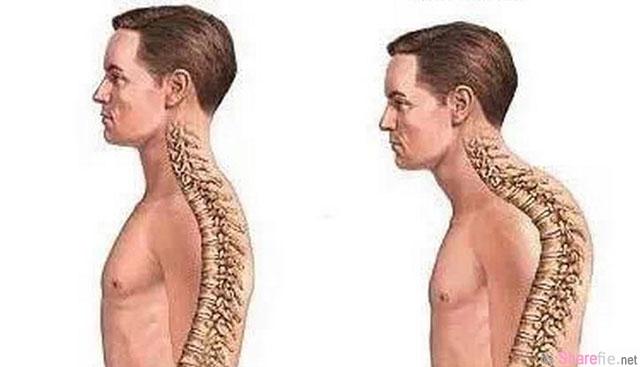 改善日常駝背問題,只要做這 5 個動作...背痛,腰痛,頸椎痛都好了!很簡單的!