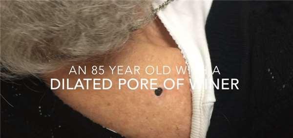 看到这颗「85年陈年老黑头」拔出,有一种莫名的舒服,尤其是留下的那个洞