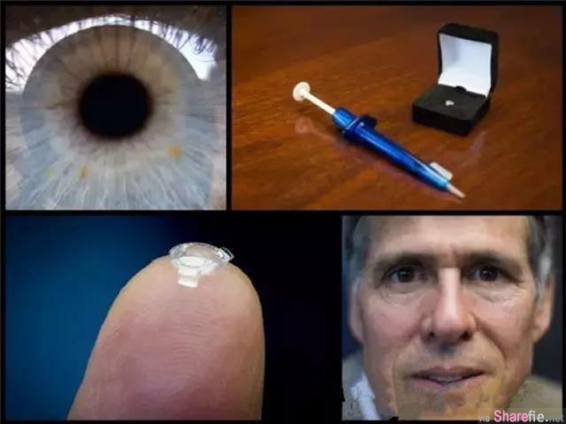超神奇!加拿大新科技:2017年将不存在近视、白内障,只要 10秒钟永远保持视力...