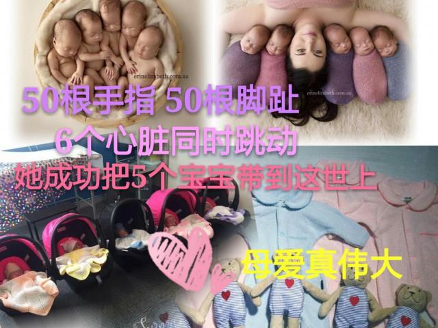 经历了最艰难的战斗,让五个宝宝安全来到世上