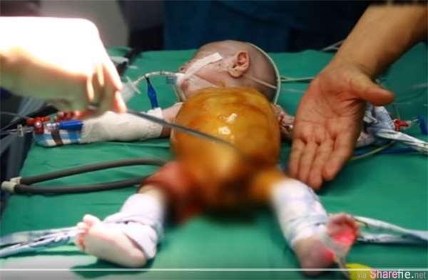"""天生无肛门的小婴儿令人心疼,出生80天都是靠""""这里""""排便的"""