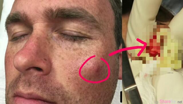 超恐怖!这颗脸上痘痘看起来没什么 但用力挤压后喷出来的画面根本就是在挤美奶滋