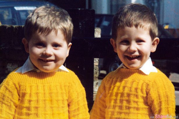 这对双胞胎小时候样子长的一样可爱,但长大后他们发生的变化让人好心酸