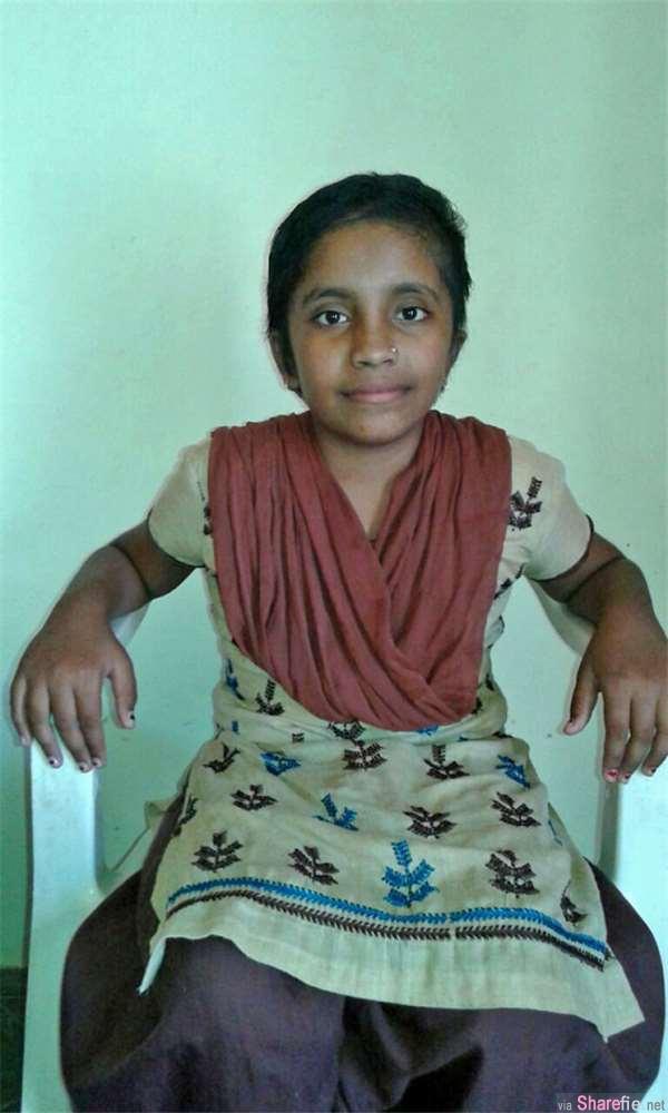 印度女童脑部遭寄生虫入侵 医生挖出恐怖超大囊肿 (有影片 慎入)