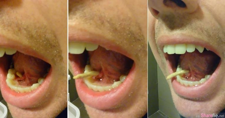 这名男子觉得舌头下面总是肿肿的  他用舌头之力一挤竟然挤出一条3.8公分的结石
