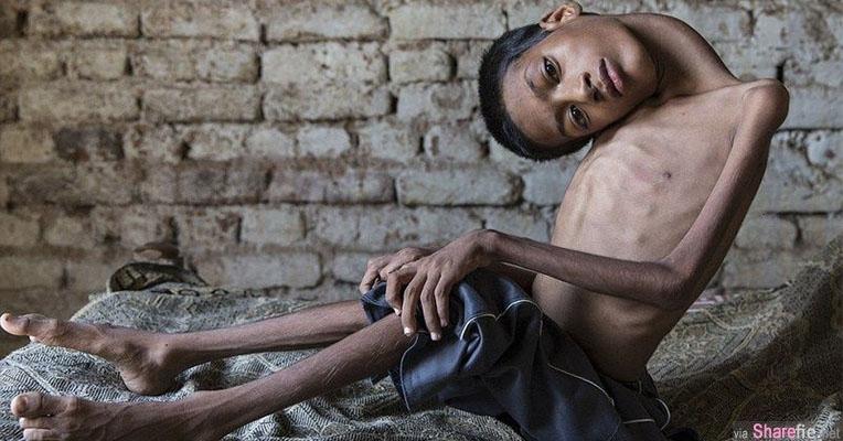 这名头部垂在胸前的印度男孩每天过的非常辛苦 他的父母甚至想把他安乐死 直到遇见了「她」
