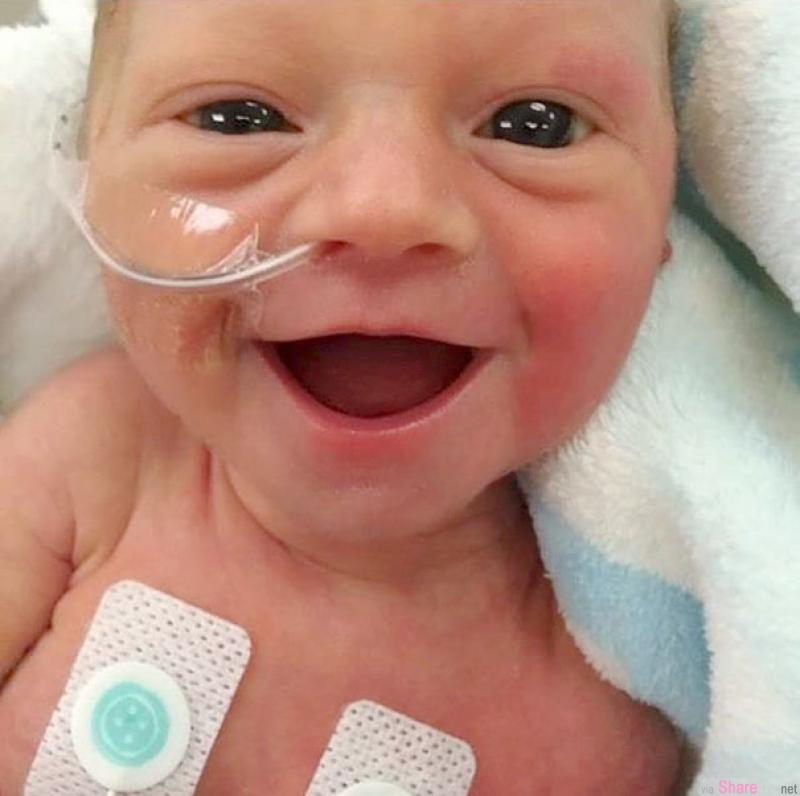 早产宝宝用最开心的笑脸宣告:我活下来啦