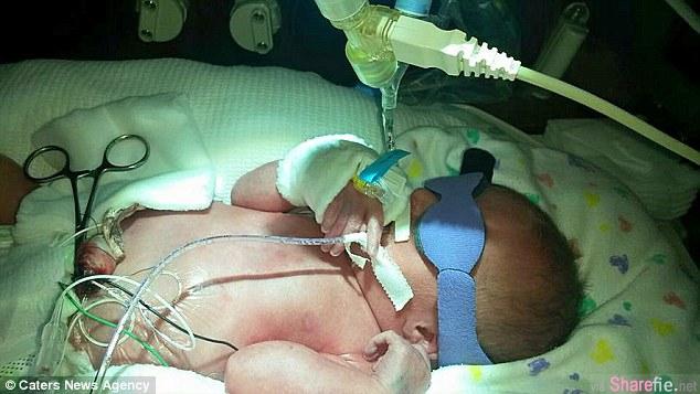 这名16个月大女婴罹患罕见疾病 舌头肥大差点就窒息 医生在她舌头中间动刀 让它露出天使般可爱笑容