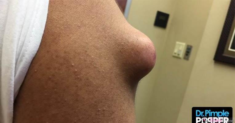这不是胸部! 是一颗超大的痘痘 当医生割开挤出来的物体让网友噁心的说:他怎么把马铃薯种进去?