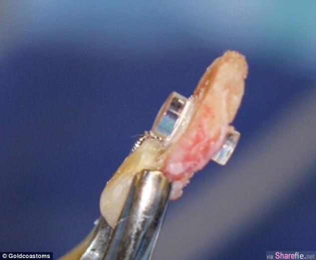 以牙还「眼」老翁牙齿变眼睛 16年后再一次见到妻子的容貌