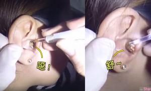 到底多少年耳屎 ?医生替少女挖耳朵 越挖越多让人超疗愈