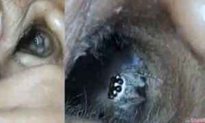 印度女子耳朵痛苦欲裂 医生竟然用这个方法取出一只活蜘蛛
