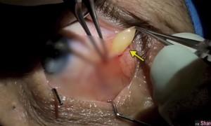 挤粉刺让人超疗癒,这个「眼球挤脓包」让网友的疗癒度再次升级
