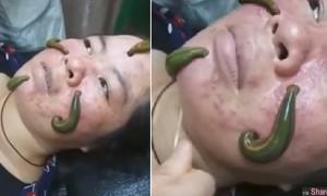 网络疯传水蛭疗法,四只肥滋滋的水蛭在脸上吸饱吸满