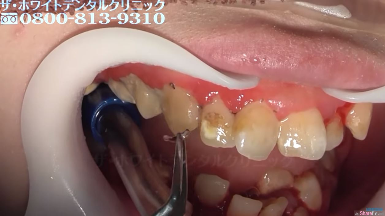 25岁日本女子害怕看牙医,满口都是牙结石,4分钟清理影片过程超疗愈